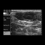triLinVet_Bovine_ovary_with_CL